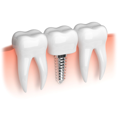 implante dental fijo